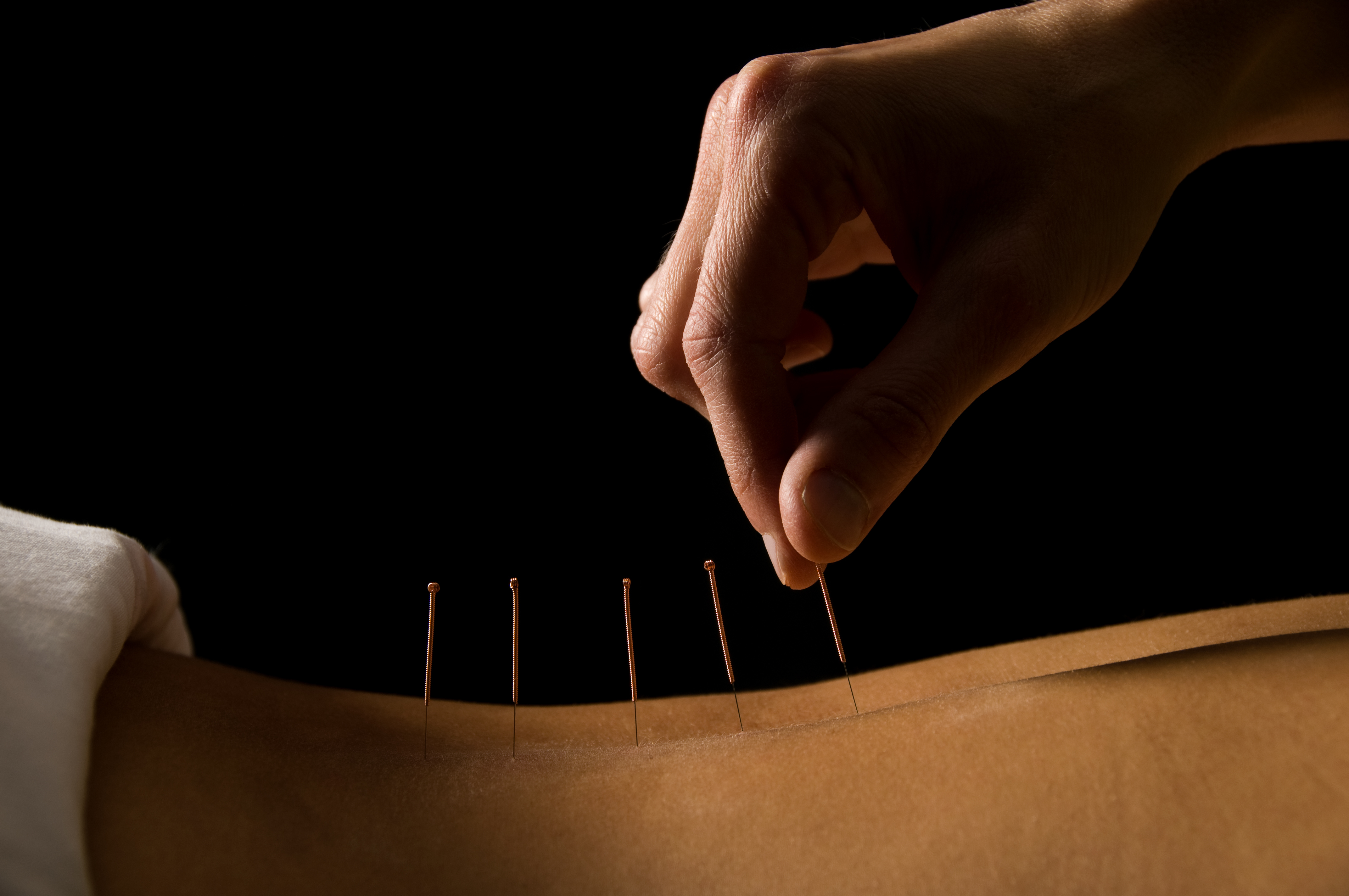 what is acupuncture What is acupuncture find out how it works, the possible uses and benefits, what a typical treatment is like, and potential side effects.